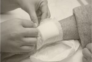 פצעים קשיי ריפוי