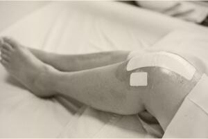 פצעי ניתוח